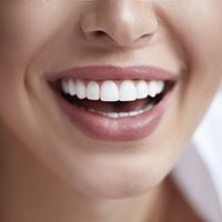 close up of person smiling with straight white teeth