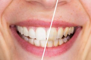 Whitened smile before and after visiting San Antonio cosmetic dentist